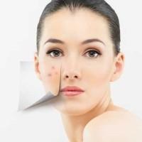 acne care