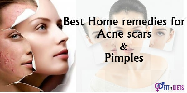 home remedies for acne scars removal
