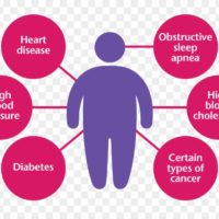 Cure Obesity With Simple Diet And Lifestyle Changes